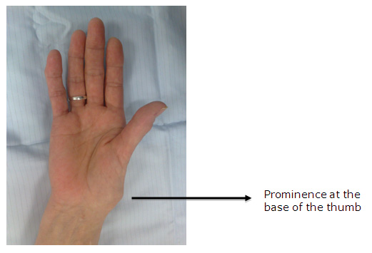 Common Injuries An Athletic Trainers Boc Guide To The Hand And Wrist